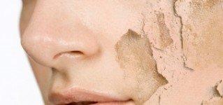 Peeling glikolowy