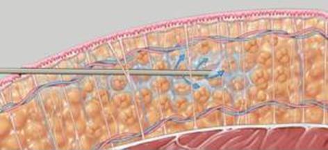 Liposukcja - podawanie płynu znieczulającego