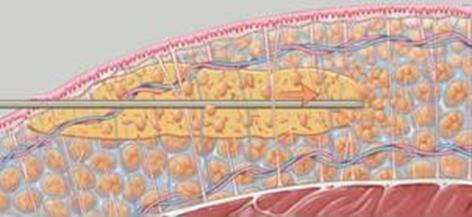 Liposukcja - odseparowanie tkanki tłuszczowej