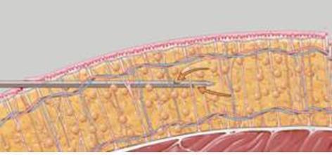 Liposukcja - usunięcie tłuszczu