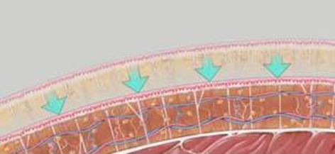 Liposukcja - wygładzenie skóry