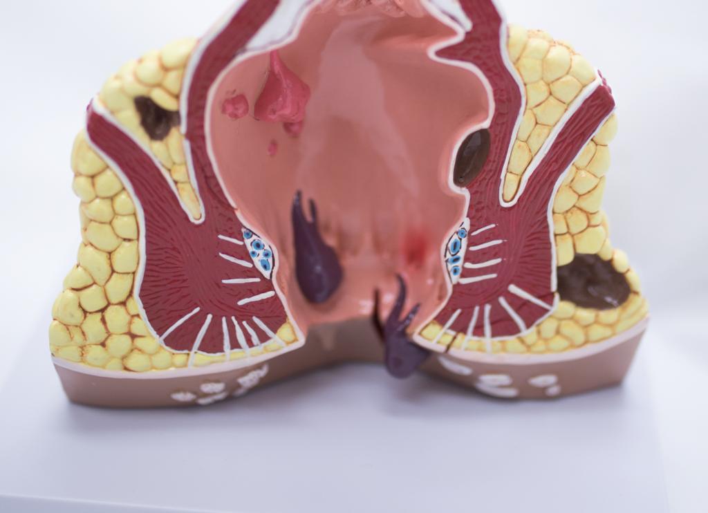 hemoroidy leczenie