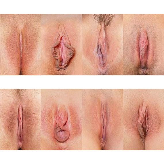 labioplastyka 2