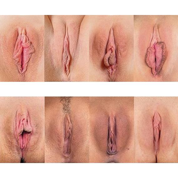 labioplastyka 3
