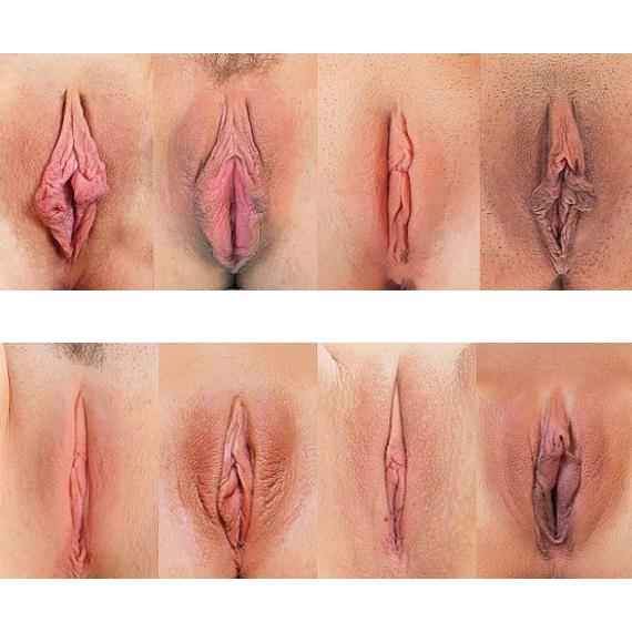 labioplastyka 4