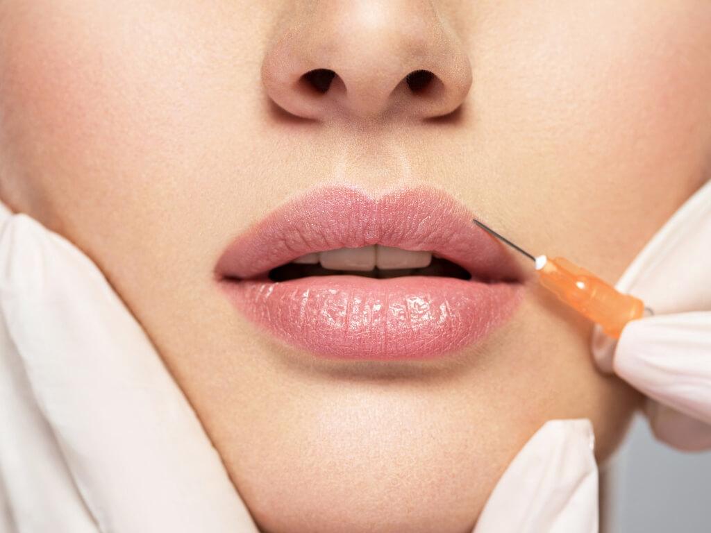 Powiększanie ust kwasem hialuronowym – jak wygląda zabieg i jakie można uzyskać efekty