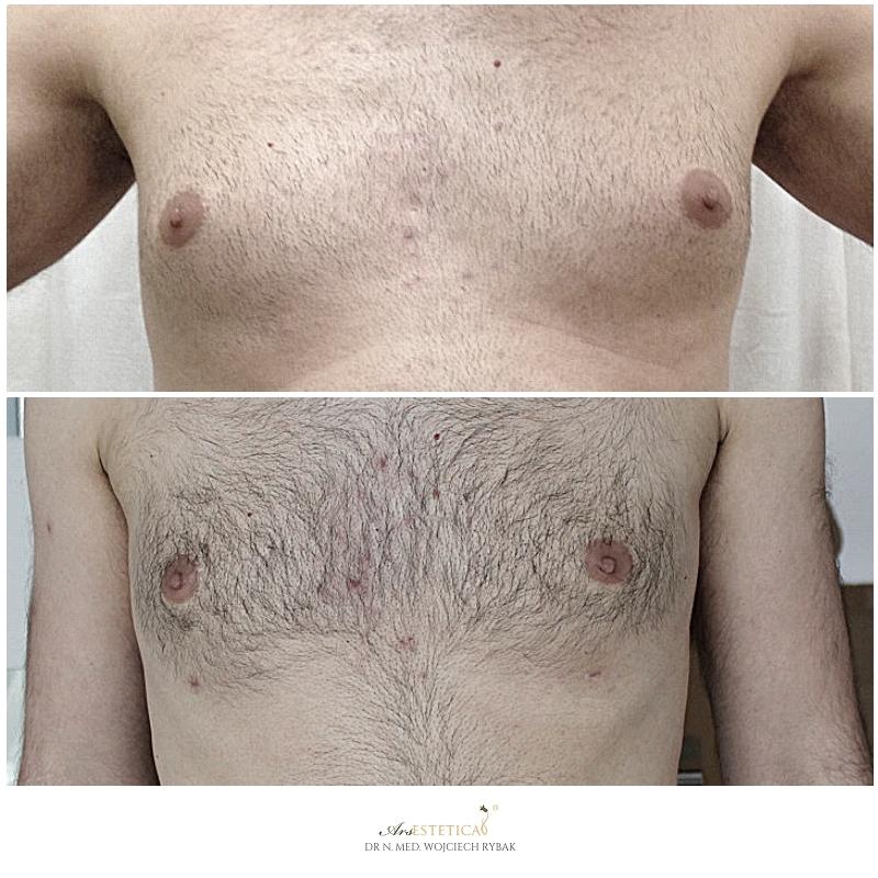 ginekomastia przed i po 1