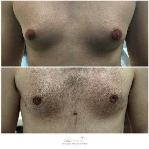 ginekomastia przed i po 2