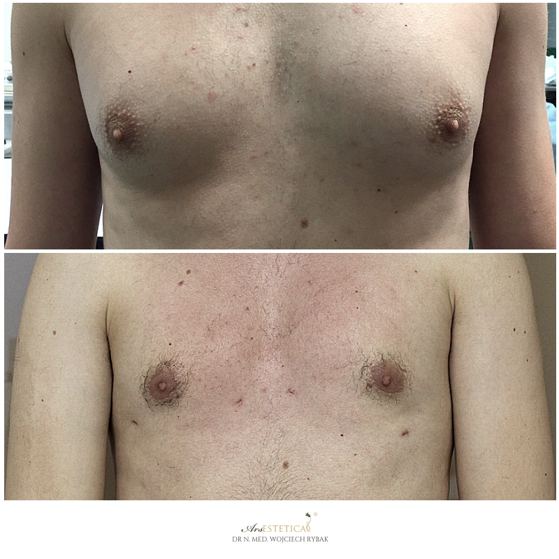 ginekomastia przed i po 3