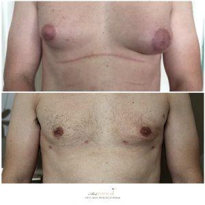 ginekomastia przed i po 4