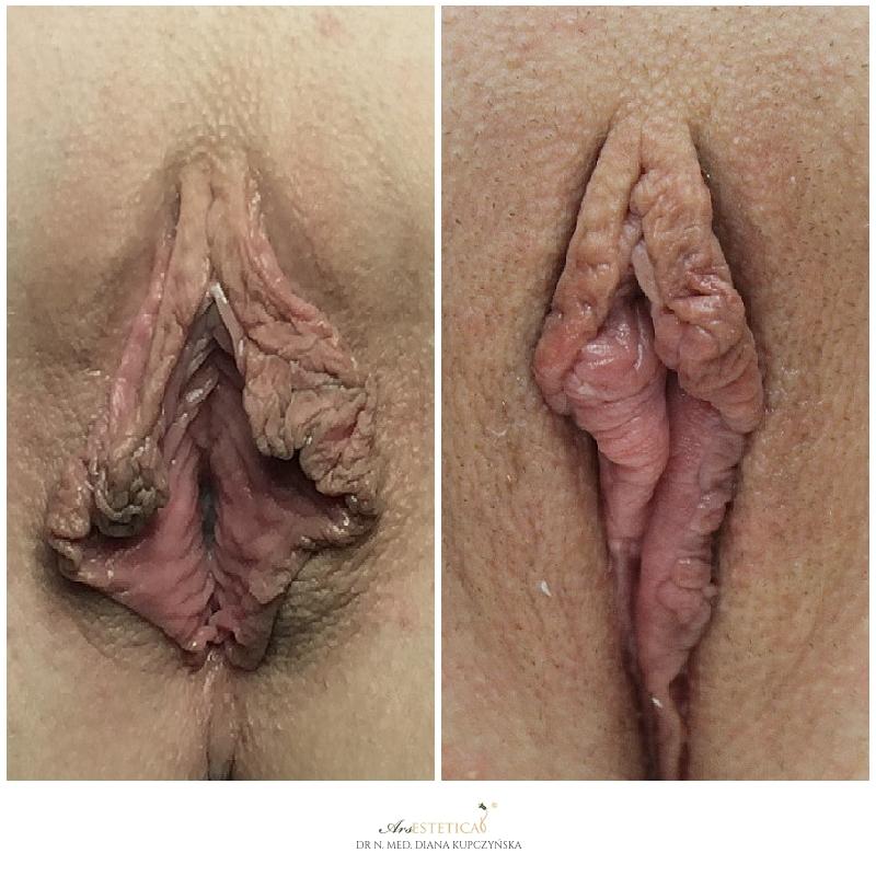 labioplastyka przed i po
