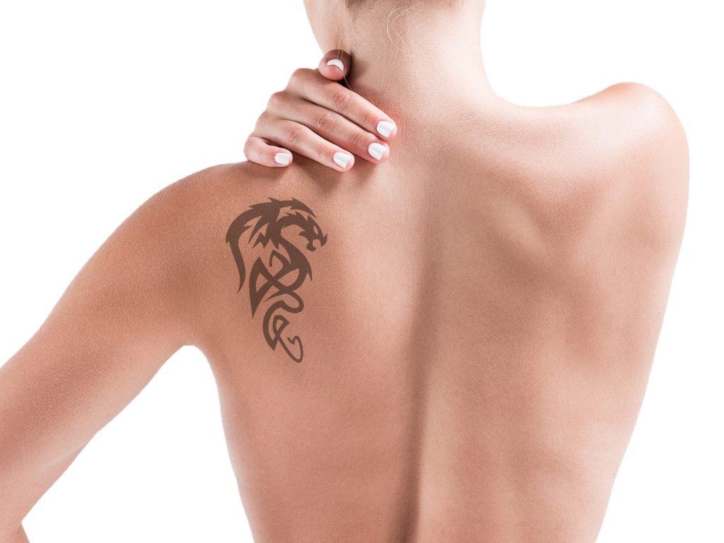 laserowe usuwanie tatuazu
