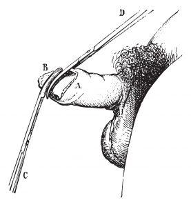 operacja stulejki lub obrzezanie