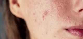 Trądzik pospolity – objawy, przyczyny, leczenie