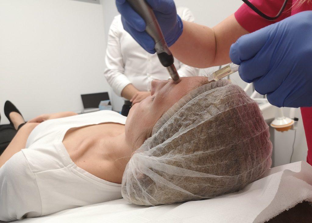 dermapen-mezoterapia-mikroiglowa