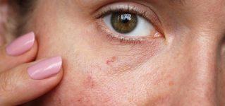 Zamykanie naczynek na twarzy – metody, opinie i ceny usuwania naczynek