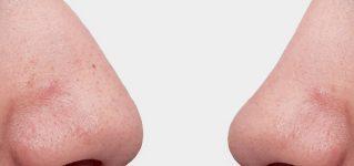 Korekta nosa – jak wygląda i ile kosztuje operacja nosa