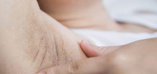 Nadpotliwość – przyczyny i metody leczenia