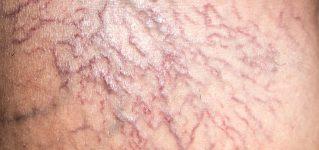 Pajączki na nogach – przyczyny, objawy, leczenie
