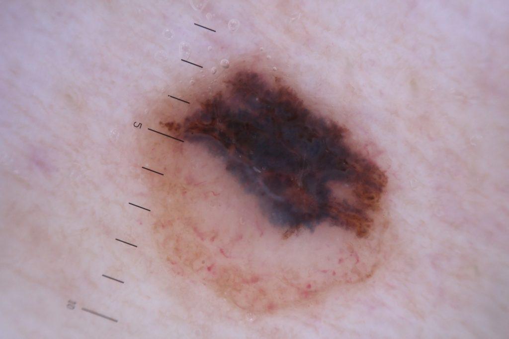 badanie znamion dermatoskopem