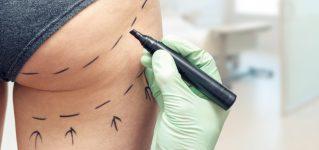Operacje plastyczne – najpopularniejsze zabiegi