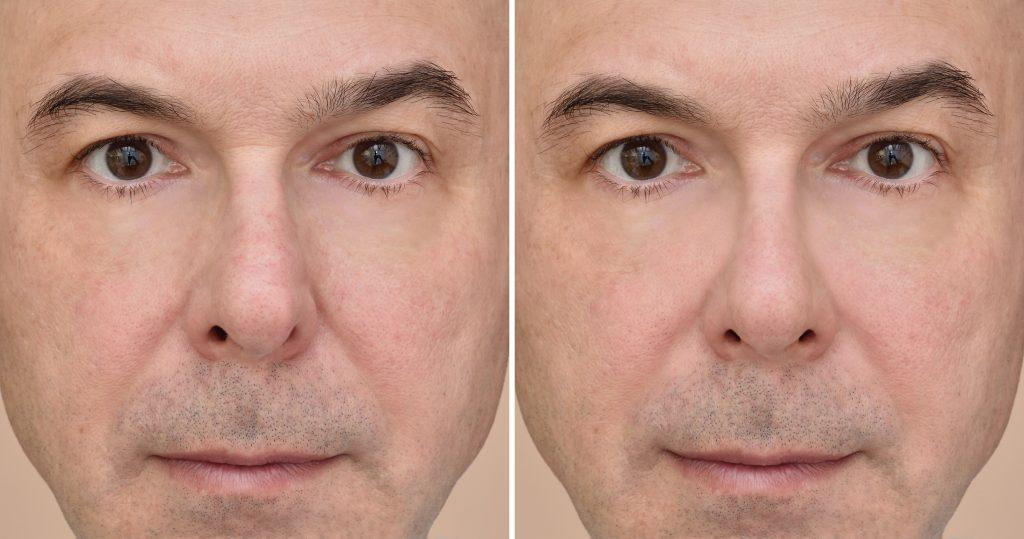 korekta nosa przed i po