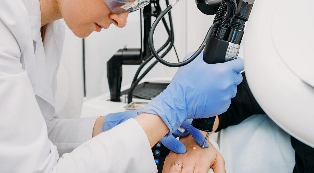 laserowe usuwanie zmiany skórnej
