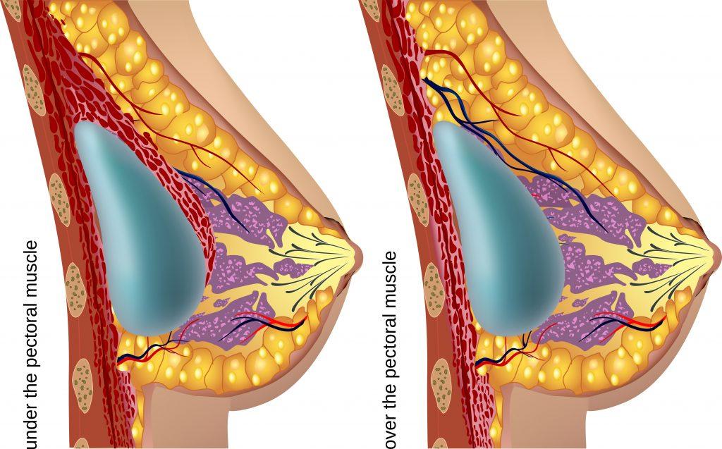 powiekszanie biustu implantami