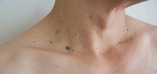 Usuwanie pieprzyków – metody i wskazania do zabiegu