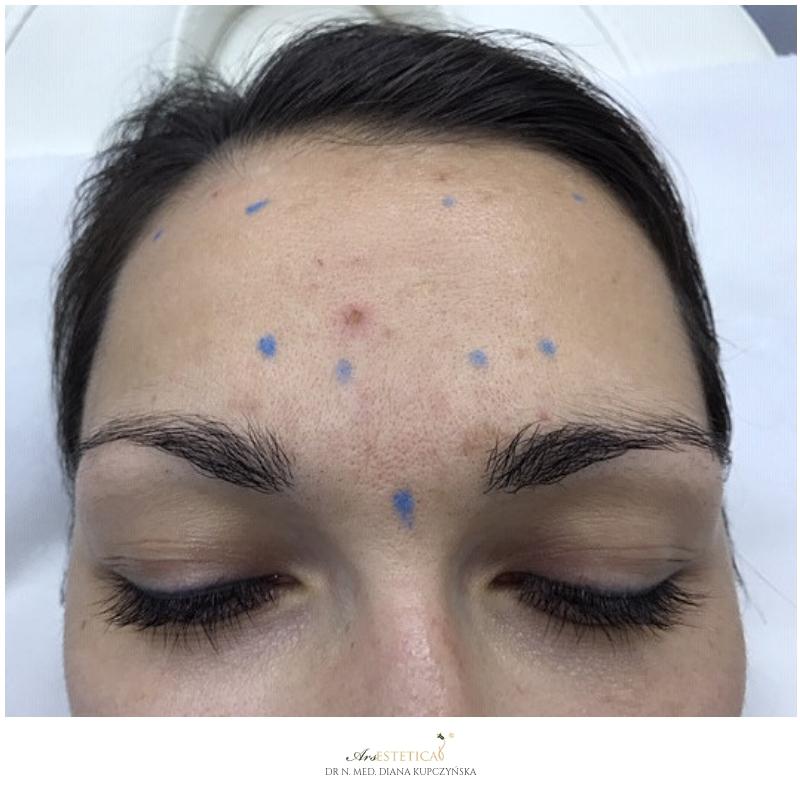 botox - przebieg zabiegu