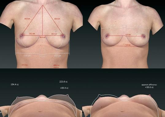 symulacja powiekszania biustu