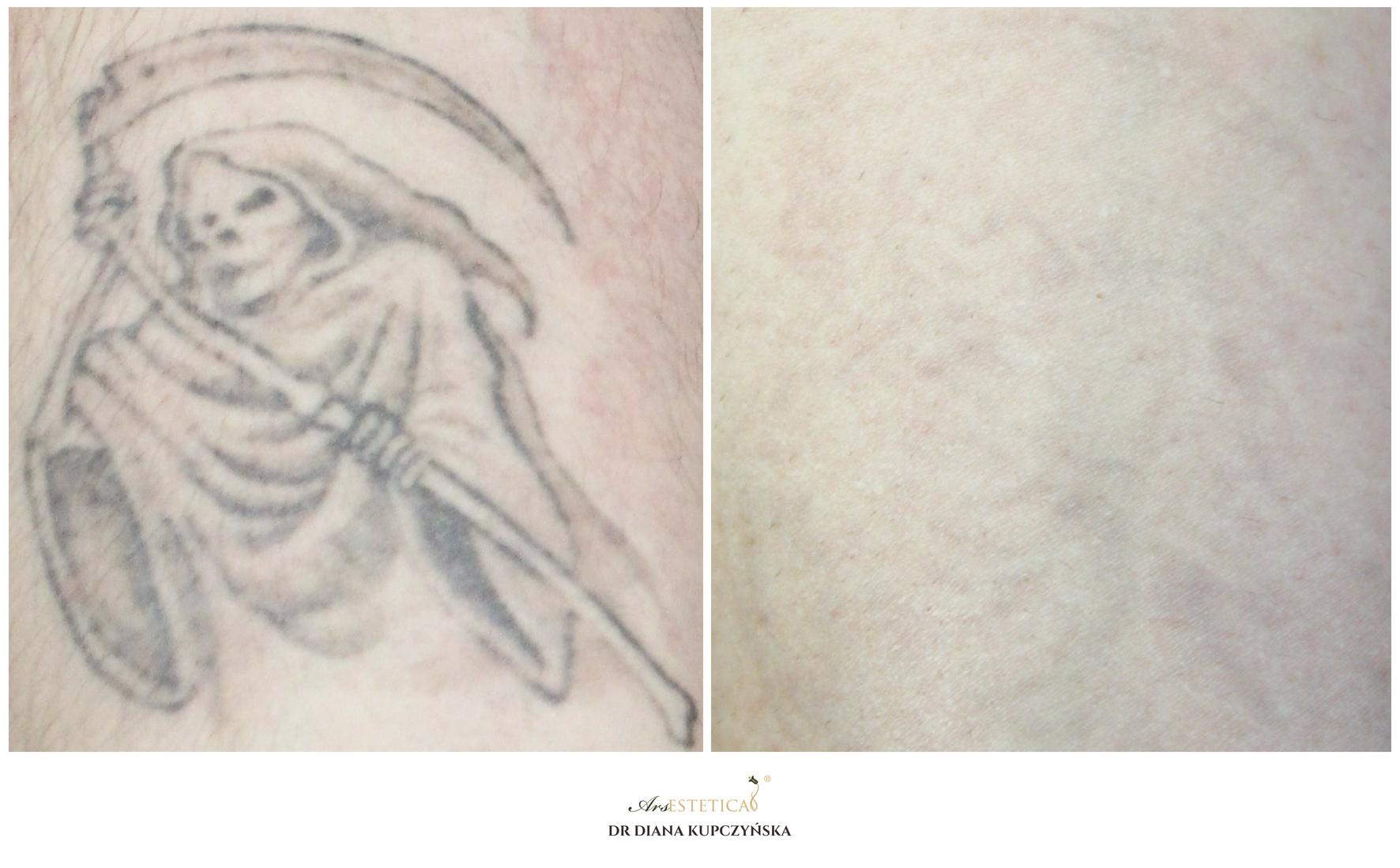 laserowe usuwanie tatuazu (1)
