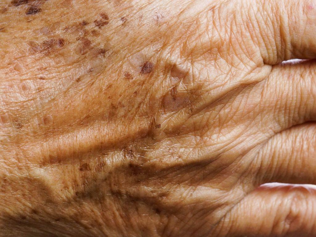odmładzanie skóry dłoni