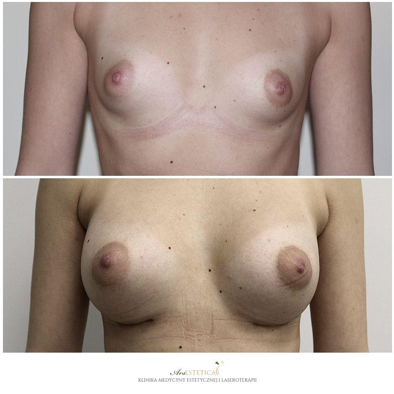 powiekszanie-piersi-1