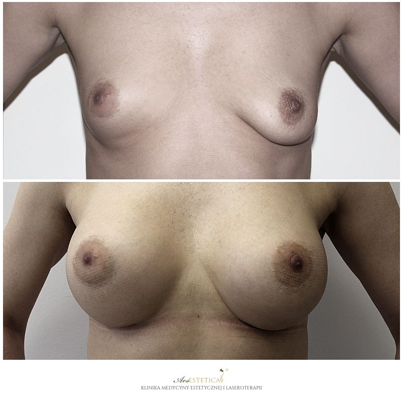 powiekszanie-piersi-3