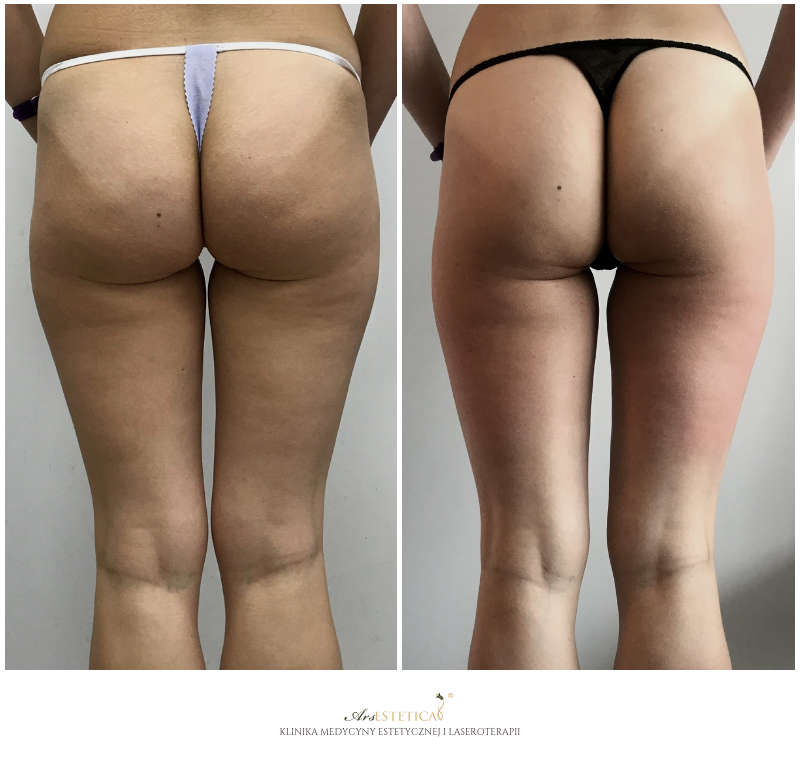 liposhock przed i po