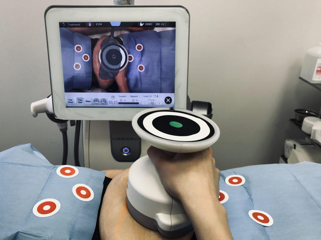 zabieg ultrashape