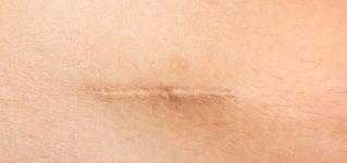 Laserowe usuwanie blizn – wskazania, przebieg zabiegu i efekty leczenia