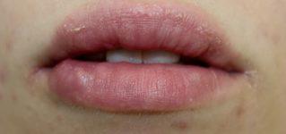 Powikłania po zabiegu powiększania ust