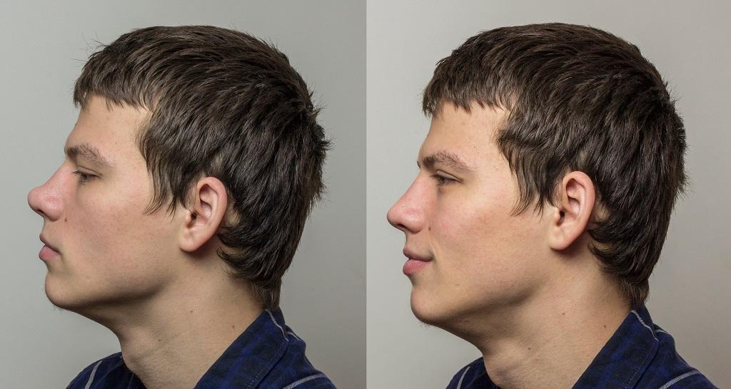 korekta nosa wrocław