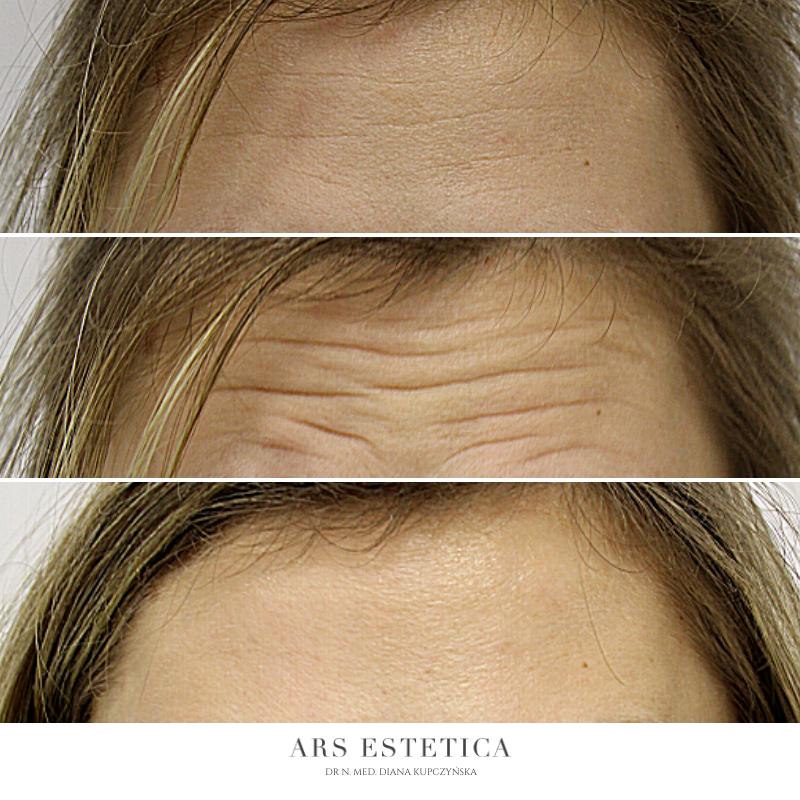 botox zdjęcia przed i po