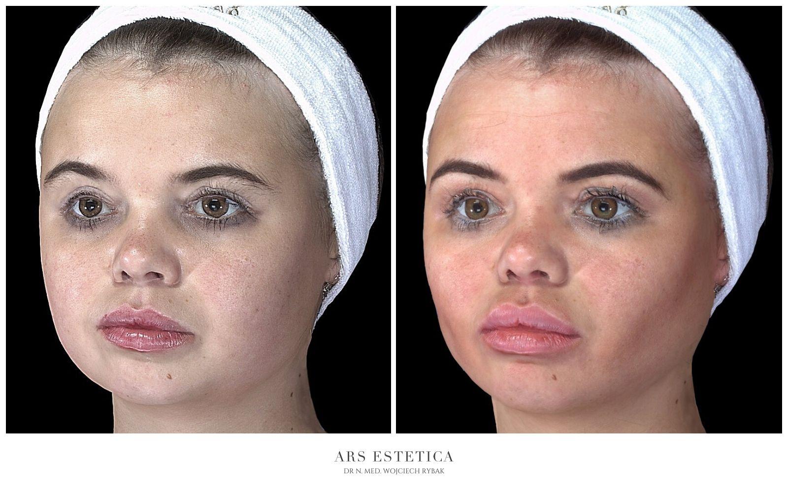 buccal fat removal przed i po