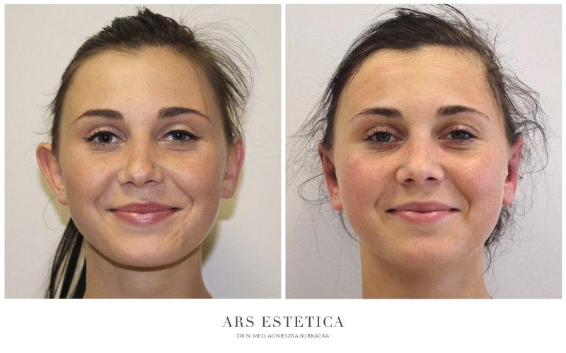 korekta uszu przed i po