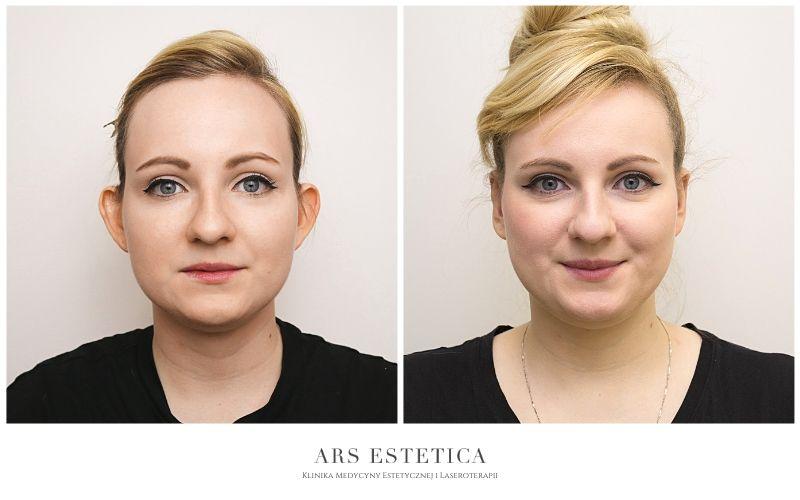 korekta uszu zdjęcia przed i po 1