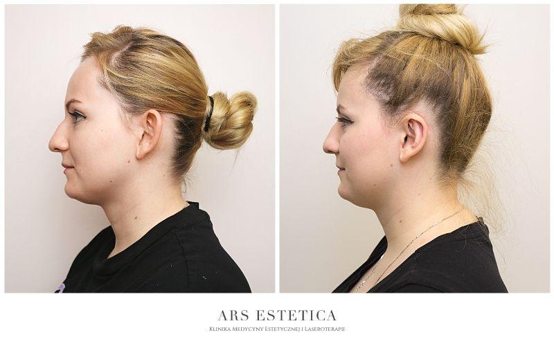 korekta uszu zdjęcia przed i po 2