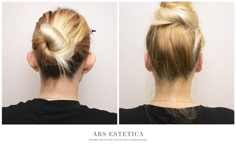korekta uszu zdjęcia przed i po 3