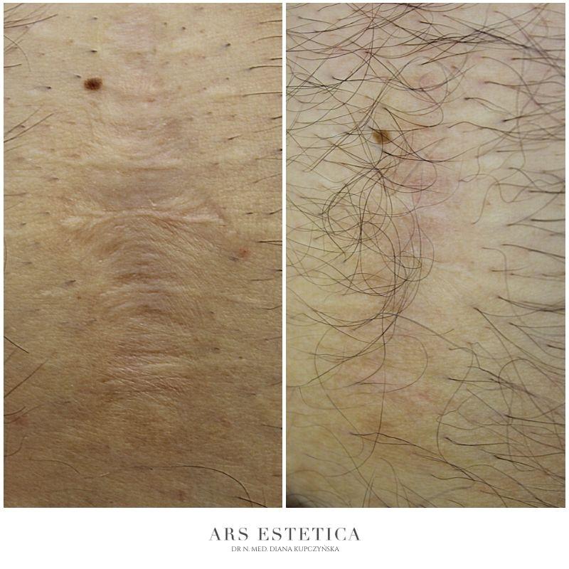 laser frakcyjny zdjęcia przed i po