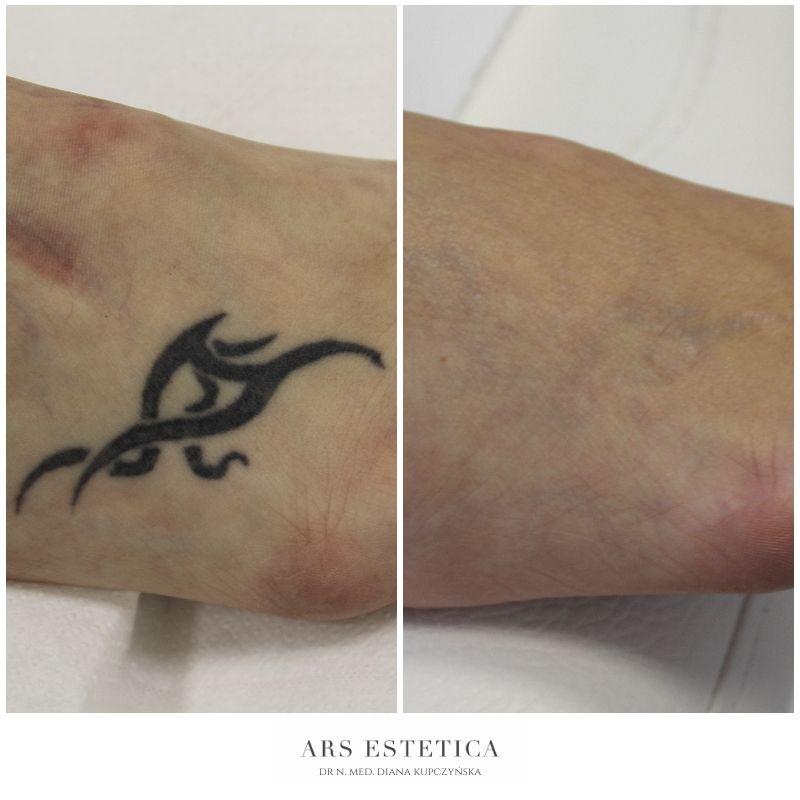 laserowe usuwanie tatuażu zdjęcia przed i po
