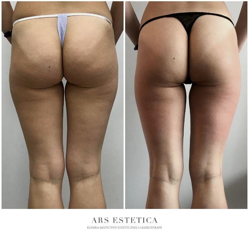 liposhock zdjęcia przed i po 1