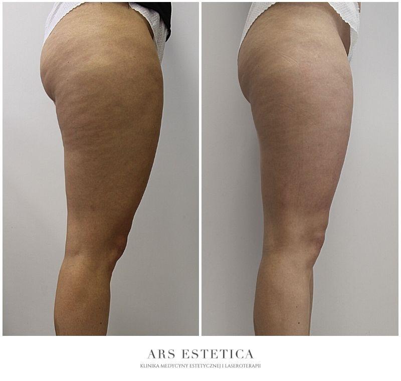 liposhock zdjęcia przed i po 2